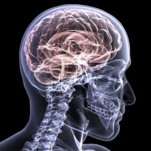 Brain injury caused by a car accident